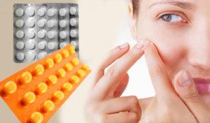 pastillas para el acne juvenil