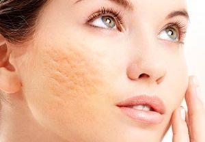 pastillas para el acne hormonal